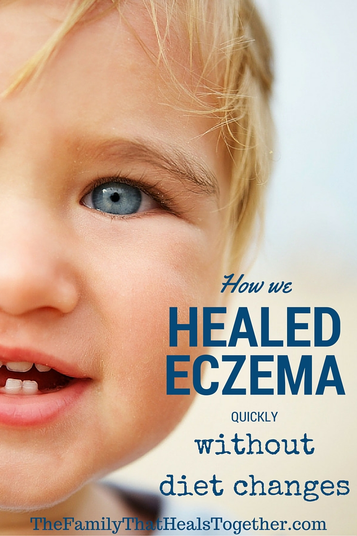 How we healed our son's eczema rash quickly... without changing his diet! - The Family That Heals Together